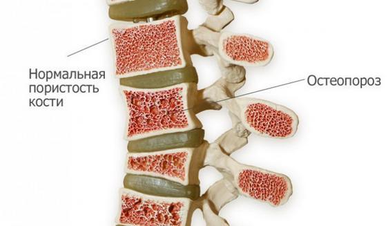 остеопороз у пожилых
