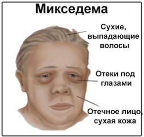 внешние признаки ожирения