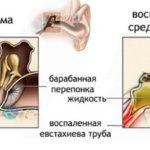 отомикоз симптомы