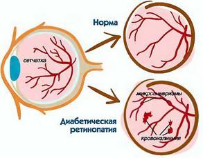Симптомы диабетическрй ретинопатии