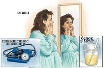 диабетическая нефропатия стадии