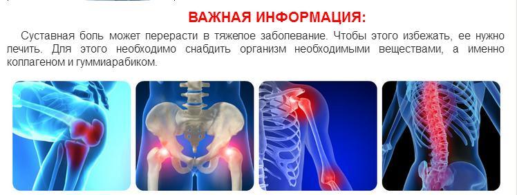 Симтомы развития остеопороза