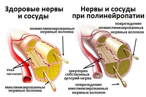 Полинейропатия повреждение сосудов