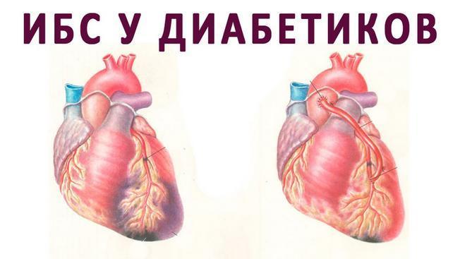 Препарат Джардинс защита сердца