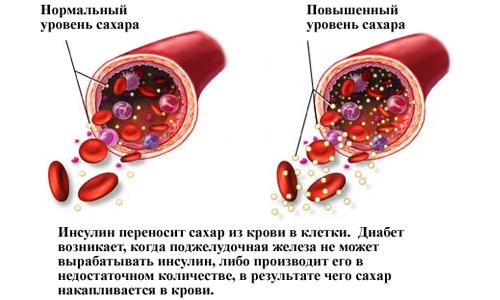 Глюкоза в крови нормальный и повышенный показатель