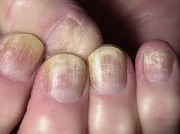 Воспаления ногтевой пластины