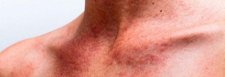 Высыпания на коже в виде красных пятен с зудом у взрослых