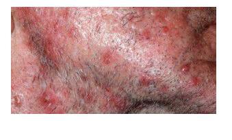 кожные высыпания при диабете