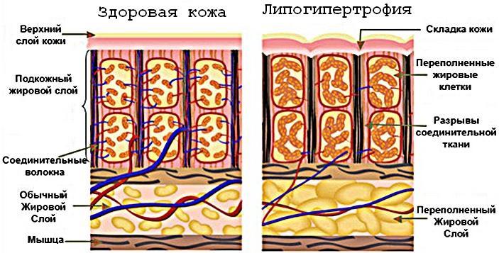 липогипертрофия живота