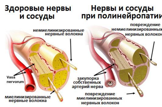 Как работает альфа-липоевая кислота
