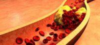 Атеросклероз почечных артерий как диагностируется заболевание