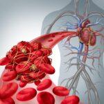 тромбоз основные причины симптомы