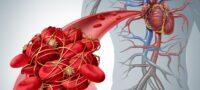 Тромб причины образования сгустков крови в организме