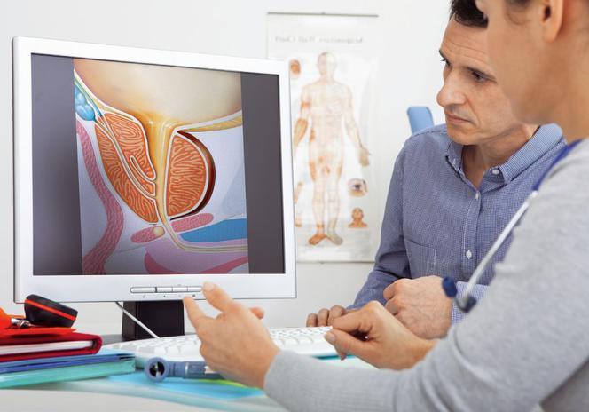 рак простаты симптомы признаки